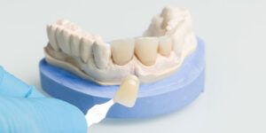 Existe Faceta de Porcelana ou Lente de Contato Dental na parte detrás do dente?